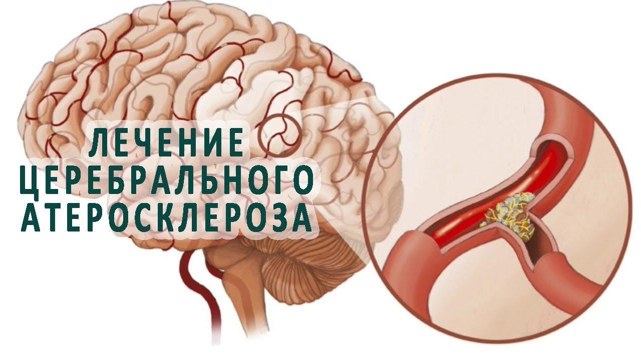 церебральный атеросклероз